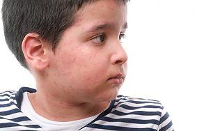 Poznaj powszechne problemy skórne dzieci
