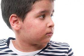 Poznaj powszechne problemy skórne dzieci - jak sobie z nimi radzić?