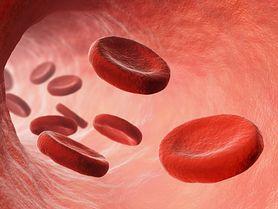 Hipoglikemia - czym jest, przyczyny
