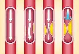 Homocysteina prawdziwą przyczyną miażdżycy