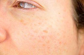 Jakie objawy na skórze daje chora wątroba? (WIDEO)