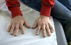 Zmiany przy paznokciach. Czego mogą być objawem? (WIDEO)