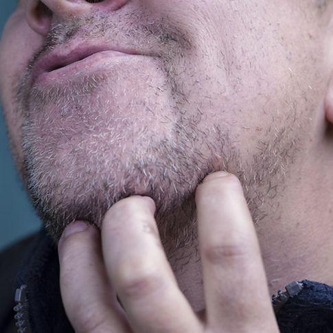 Jak wysoki cholesterol wpływa na skórę i co warto o nim wiedzieć