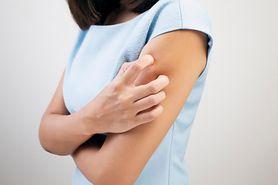 Łupież pstry - objawy, przyczyny, leczenie i zapobieganie