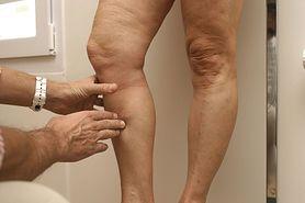 Zakrzepica po szczepieniu przeciwko COVID-19. Po ilu dniach może się pojawić i kiedy udać się do lekarza?