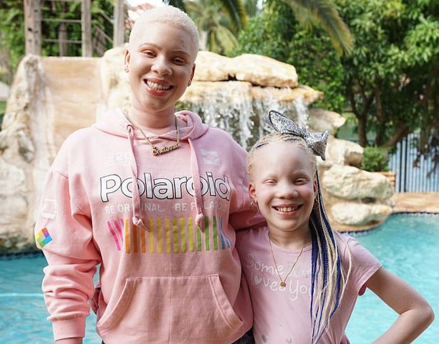 Na albinizm cierpi też jej siostra