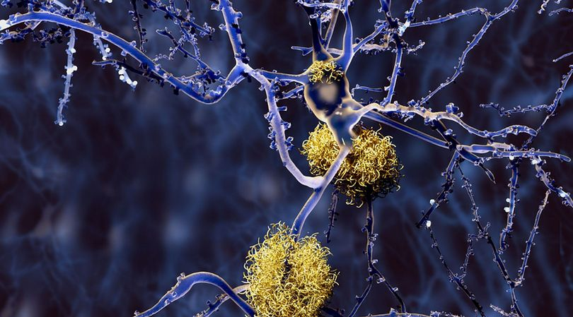 Rozwijająca się choroba Alzheimera