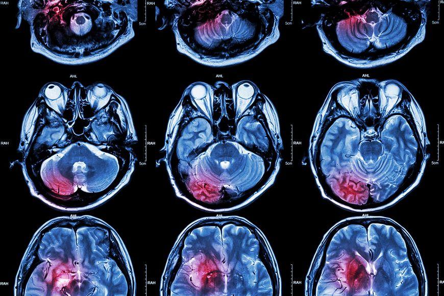Im wcześniej zdiagnozuje się guza mózgu tym większe są szanse na wyleczenie