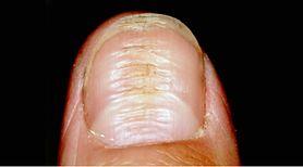Objaw cukrzycy widoczny na paznokciach. Przyjrzyj się uważnie