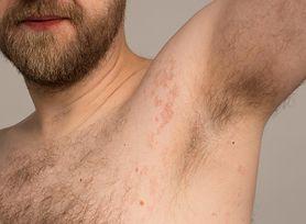 #SzczepSięNiePanikuj. Czy osoby, które miały wcześniej wstrząs anafilaktyczny, mogą przyjąć szczepionkę? (WIDEO)