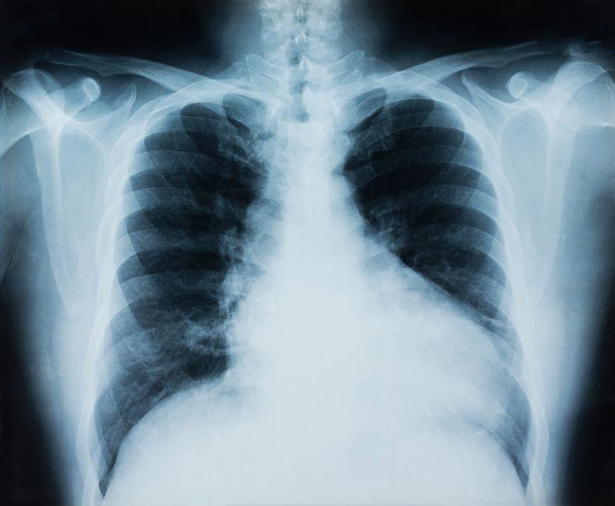 Rak płuca - dlaczego chorujemy?