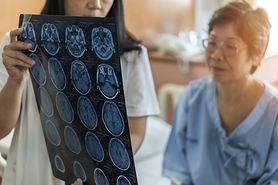 Guz mózgu - objawy, diagnostyka, rodzaje, leczenie