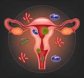 Czym charakteryzują się bakteryjne infekcje pochwy?