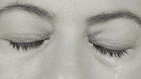 Czerniak to nie tylko rak skóry. 59-latka miała czerniaka oka (WIDEO)