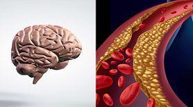 Cholesterol a mózg. Zobacz, jaka jest między nimi zależność (WIDEO)
