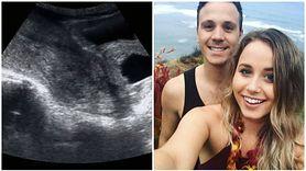 Poroniła w 8 tygodniu. Swoją historią podzieliła się w sieci i zjednoczyła wiele kobiet