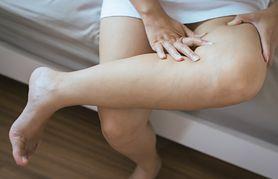 Ciężkie nogi latem. Nie tylko z powodu gorąca