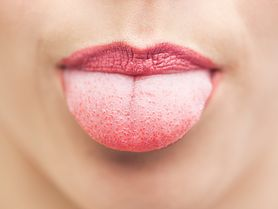 Biały nalot na języku - choroby ogólnoustrojowe, leukoplakia, płonica, dur brzuszny, kiła, zakażenia grzybicze