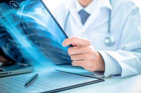 Dysplazja oskrzelowo-płucna