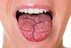 Choroba Behceta – przyczyny, objawy, diagnostyka i leczenie