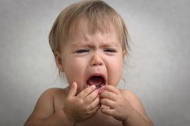 Ból zębów u dziecka – skąd się bierze i jak sobie z nim radzić?