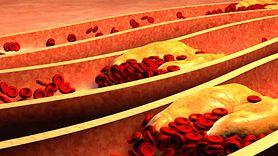 Wysoki poziom cholesterolu powoduje zmiany w organizmie. Zobacz jakie (WIDEO)