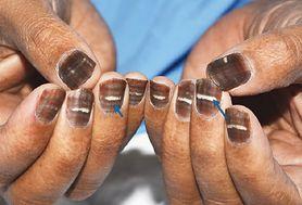 Nietypowe skutki chemioterapii. Pacjent z brązowymi paznokciami