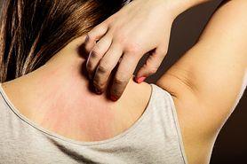 Alergeny i objawy przy alergii skórnej