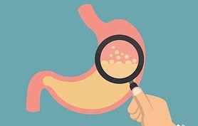 Zgaga a refluks żołądkowo-przełykowy