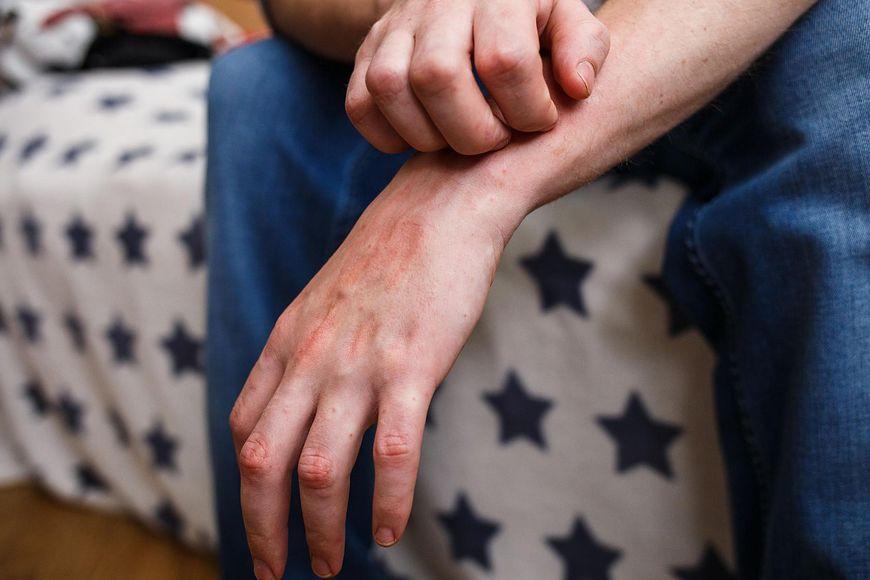 Łuszczycowe zapalenie stawów [123rf.com]