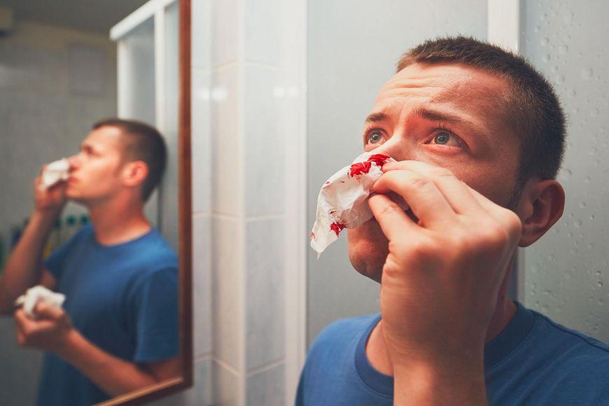 123rf.com Krwawienie z różnych otworów ciała może być objawem raka