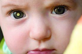 """Czy zauważyłeś """"złote oczy"""" na fotografiach twojego dziecka? To może być nowotwór"""