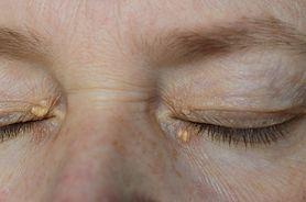 Żółtaki (kępki żółte) - rodzaje, przyczyny, czynniki ryzyka, leczenie