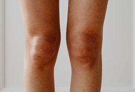 Gęsia stopka – charakterystyka, przyczyny, objawy, leczenie, profilaktyka