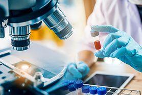 Wyniki badań krwi – erytrocyty, hemoglobina, leukocyty, limfocyty