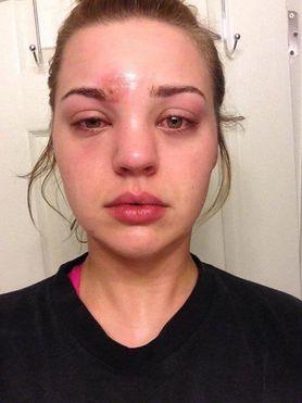 Oto czym może się skończyć używanie brudnych pędzli do makijażu! 21-latka omal nie umarła!
