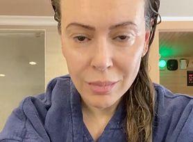 Aktorka Alyssa Milano po przejściu COVID-19 zaczęła tracić włosy. Kolejne osoby opowiadają o nietypowych skutkach zakażenia koronawirusem