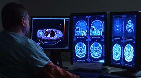 Udar mózgu jest bardzo groźny. Zobacz, czy jesteś w grupie ryzyka (WIDEO)