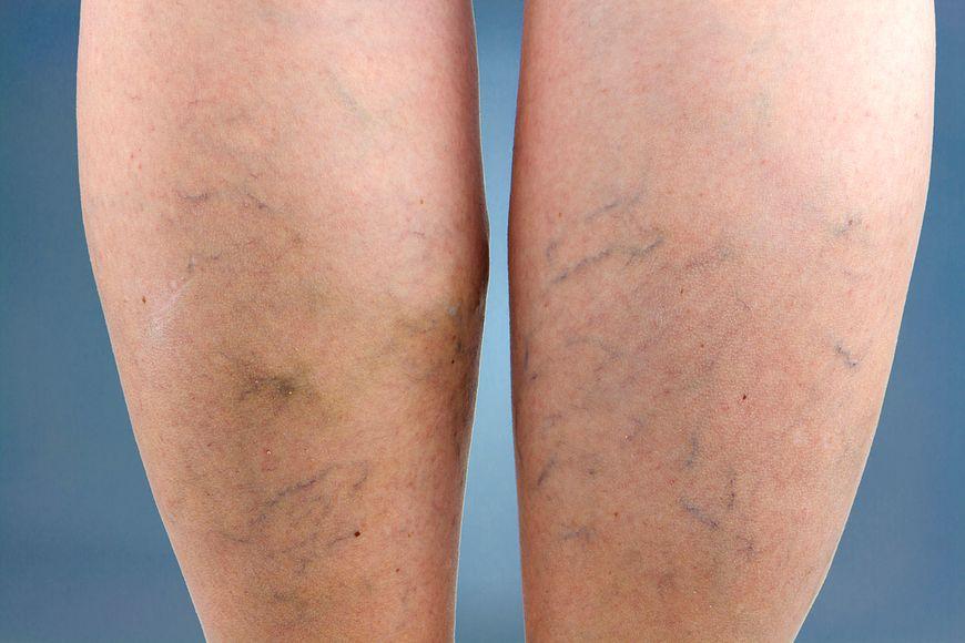 Żylaki występują na nogach niezależnie od wieku