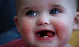 Kolejność wyrzynania się zębów