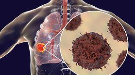 Produkty, które chronią przed rakiem płuc