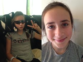 Nastolatka oślepła przez kolorowe soczewki. Były częścią kostiumu na Halloween