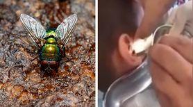 Chłopiec skarżył się na uporczywy ból głowy. Lekarz usunął z jego ucha larwy muchówek [WIDEO]