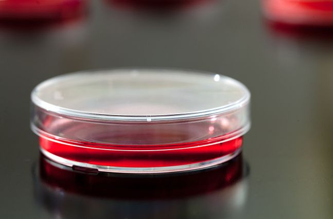 Dlaczego bakterie stają się lekooporne?