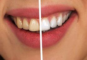 Wybielanie zębów - czynniki, które wpływają na odcień uzębienia, o czym pamiętać, domowy sposób, które produkty kosmetyczne skutecznie wybielają zęby