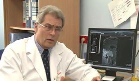 Akromegalia zwiększa ryzyko kolejnych chorób (WIDEO)