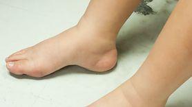 Dieta na opuchnięte nogi. Usuwa nadmiar wody (WIDEO)