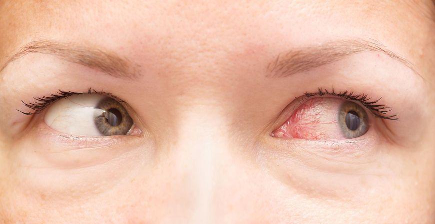 123rf.com Przekrwienie oczu może być powodowane przez potencjalnie śmiertelne choroby, takie jak cukrzyca lub miażdżyca