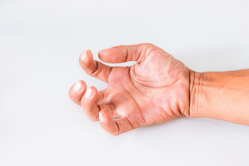 Spastyczność rąk