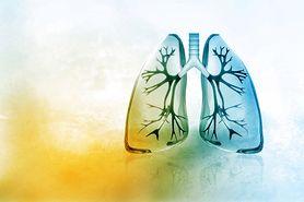 Zwapnienie płuc - przyczyny i objawy. Kiedy konieczne jest leczenie?